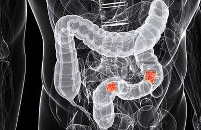 Read more about the article Concerns about colorectal cancer (CRC)