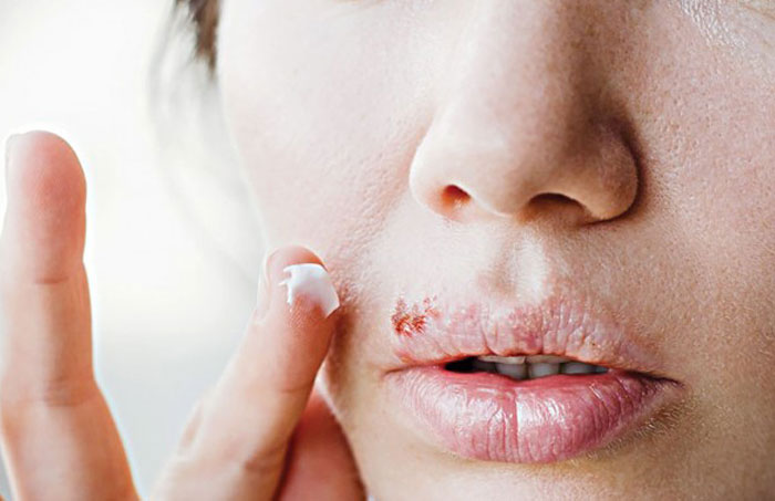 Living With Herpes
