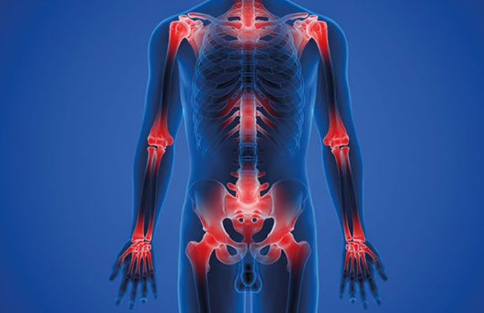 Read more about the article Stealthy Inflammation